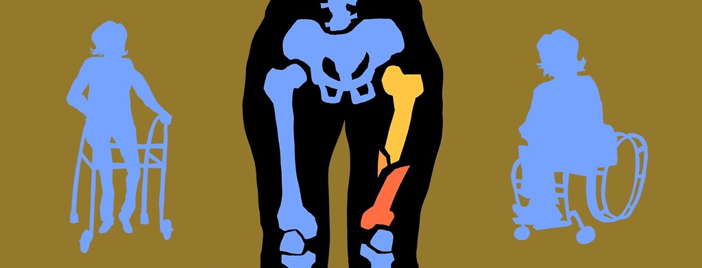 colorful silhouettes of those in wheelchairs and walker, with center figure's skeleton highlighted - but it has a bone fracture
