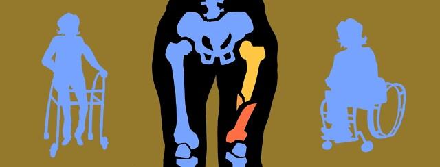 Bone Health and NMO image